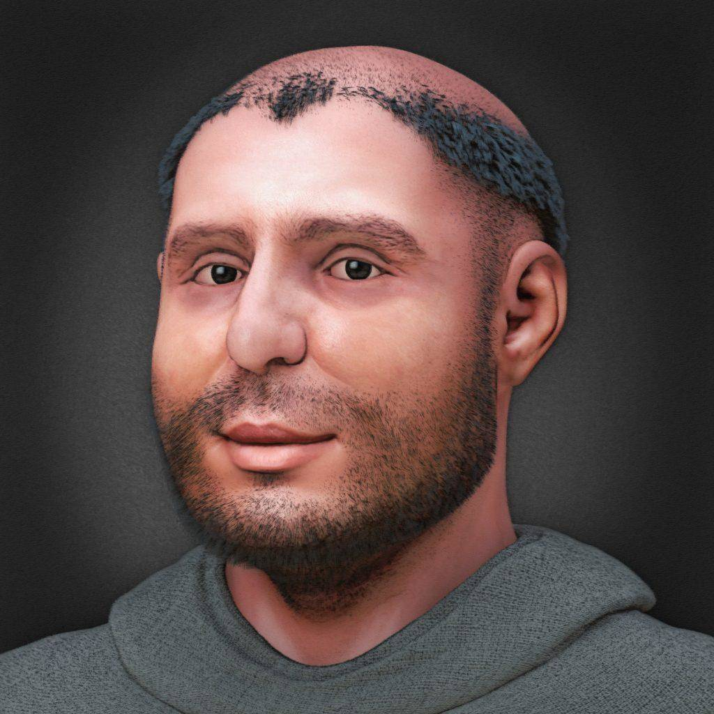 st._anthony_ facial_reconstruction_-_for_mobile_and_newspaper-94924