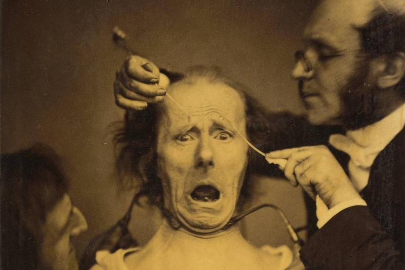 A psychologist tests the muscles on a man's face.