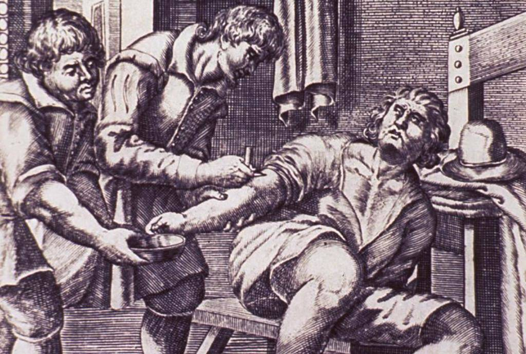 Bloodletting Was Thought To Cure Anything
