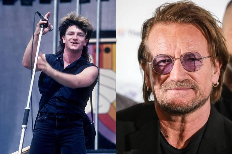 bono before and after photos