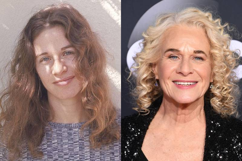 carole king before and after photos