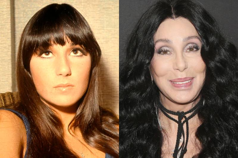 cher before and after photos