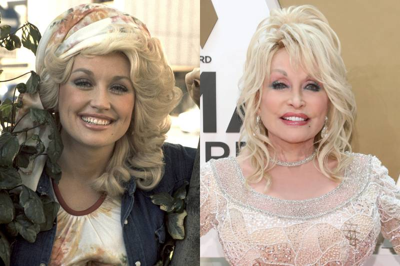 dolly parton before and after images