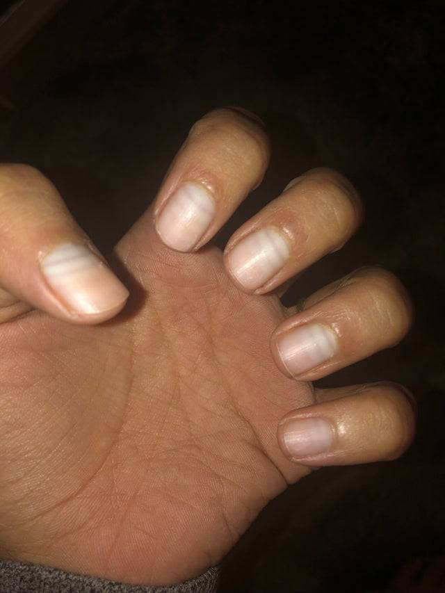 nails after chemo