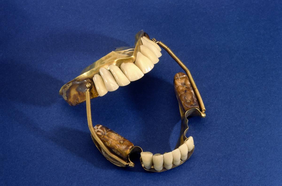 Partial denture set, c 1840-1860.